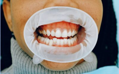 What Does It Mean If You Have White Stuff On Your Gums?