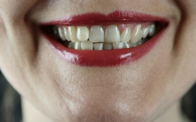 Can Dentists see you without insurance?